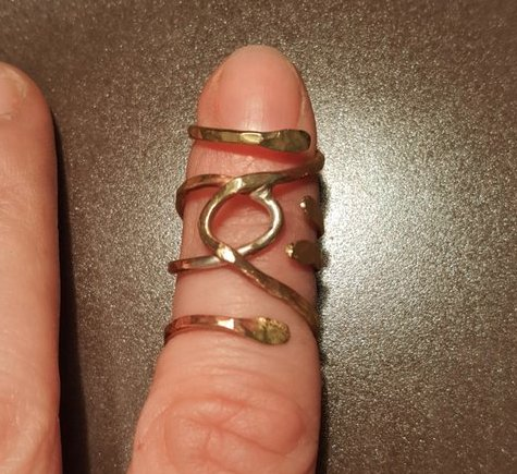 gold ring splint on first finger