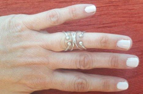 splint on ring finger