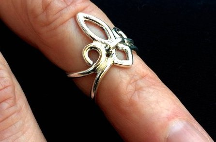 15 of the Prettiest Ring Splints for Hand Pain
