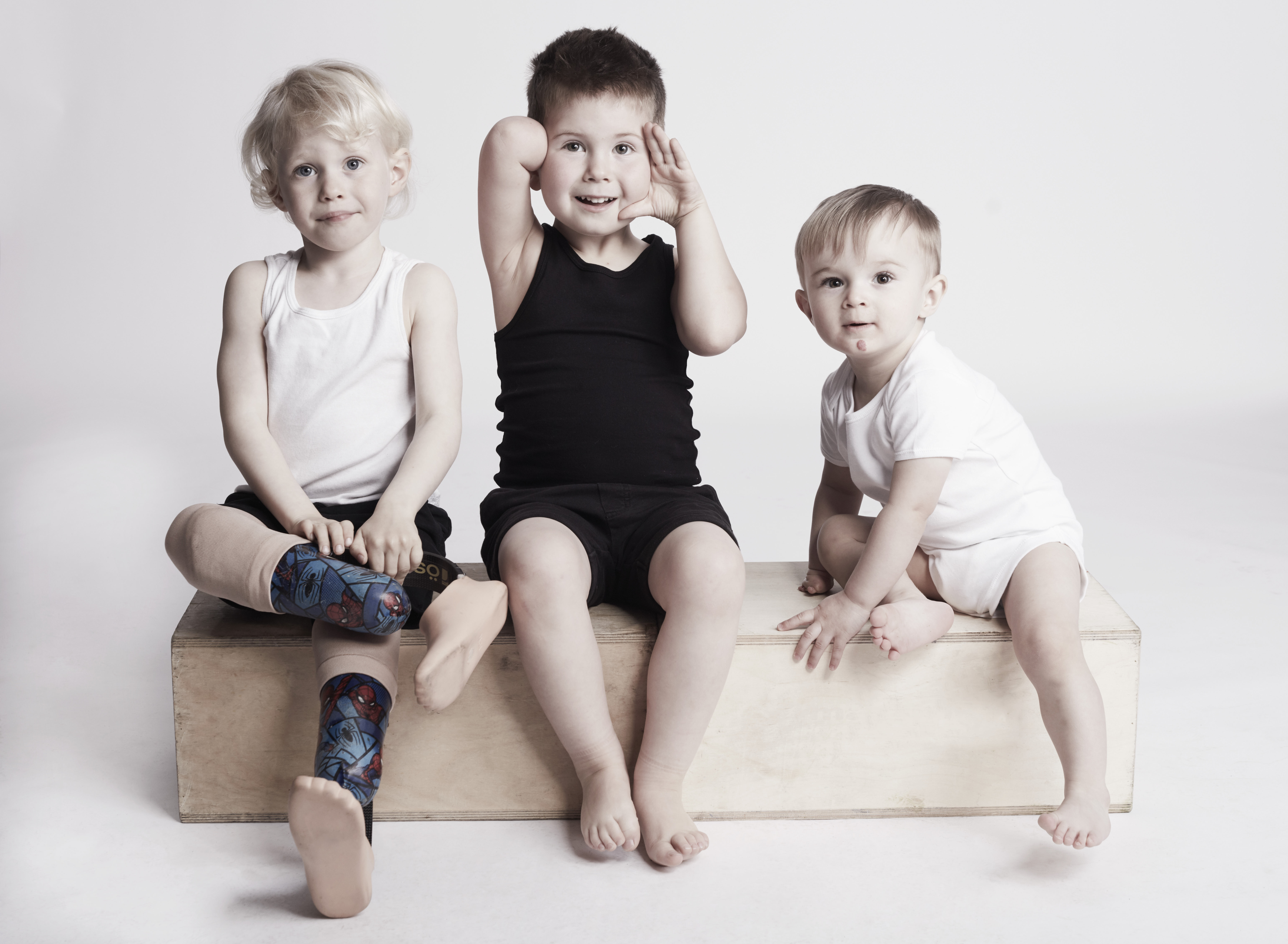 Children with limb differences